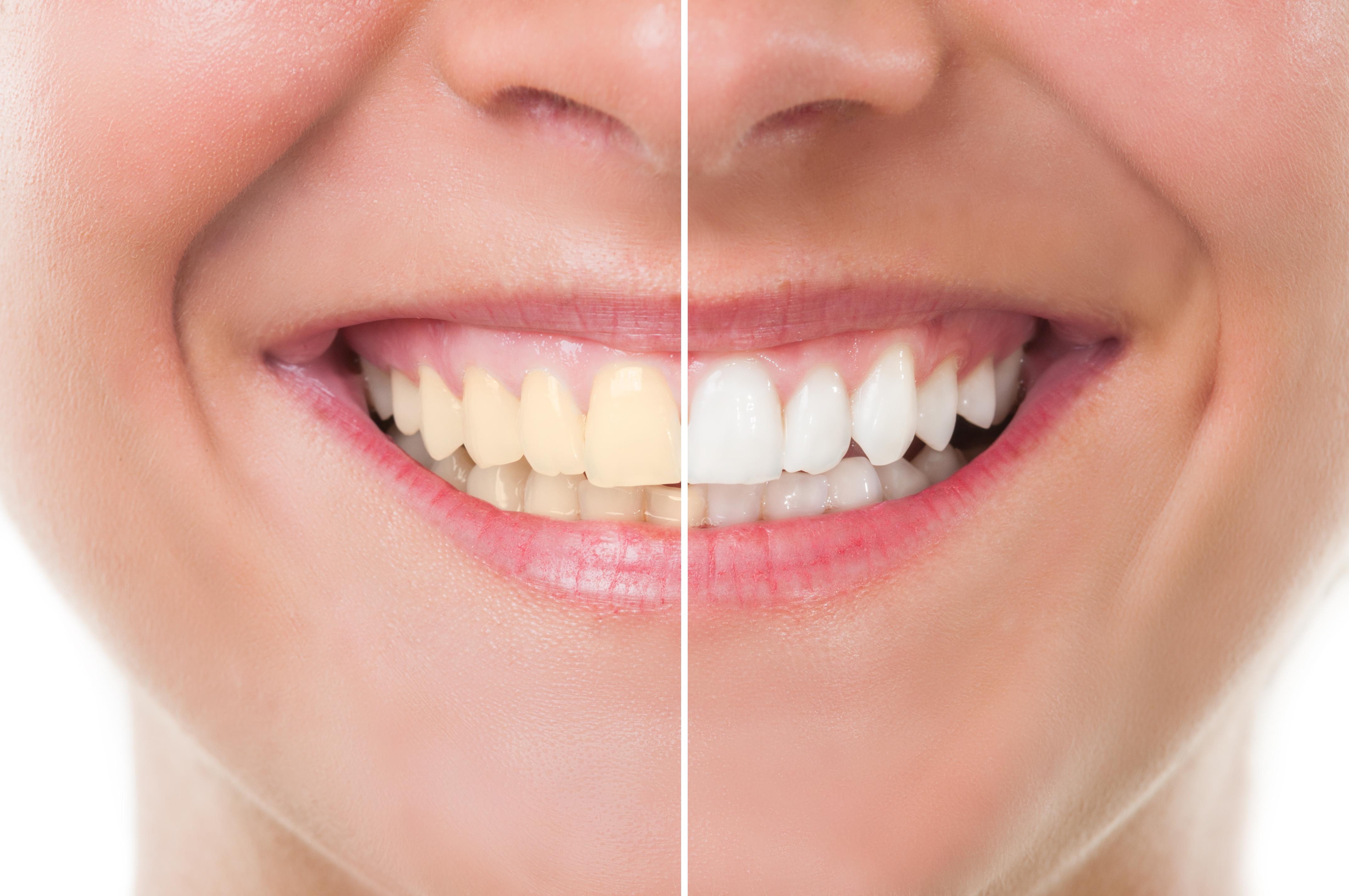 cost teeth whitening