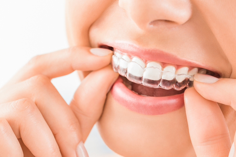 Bakersfield Orthodontics
