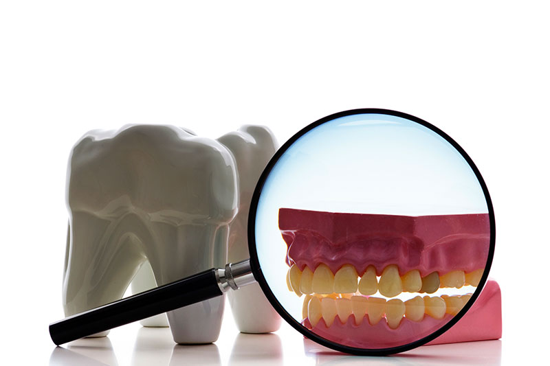 Root Canal in Bakersfield, 93301